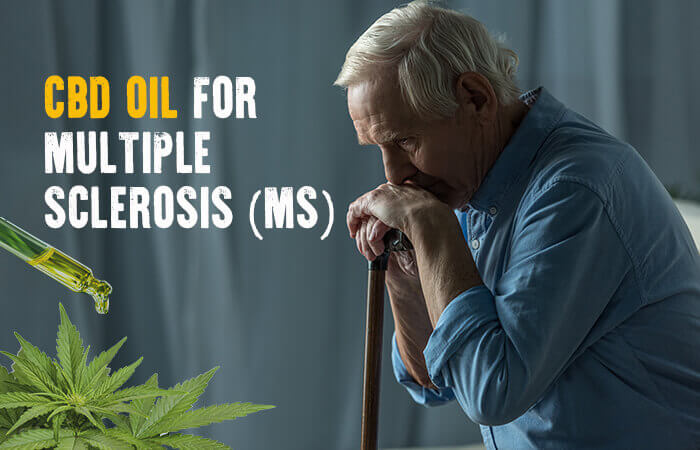 cbd for sclerosis
