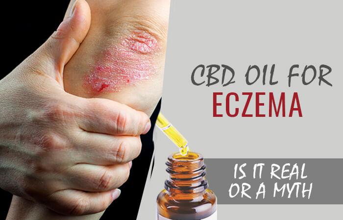 cbd-for-eczema