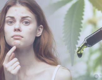 cbd-oil-for-acne